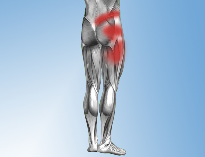 Hip Alignment Motion Dysfunction