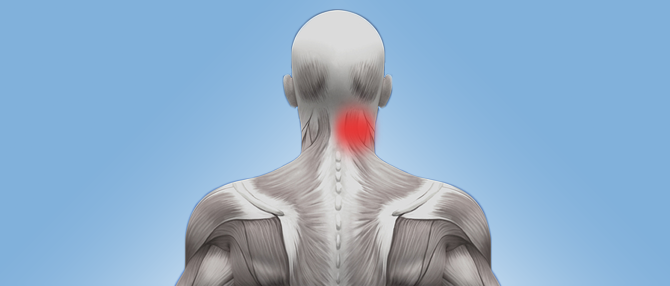 Neck_Pin-Point-Pain